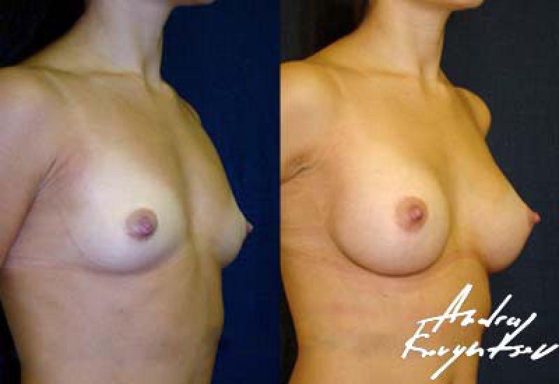 женская круглая грудь фото