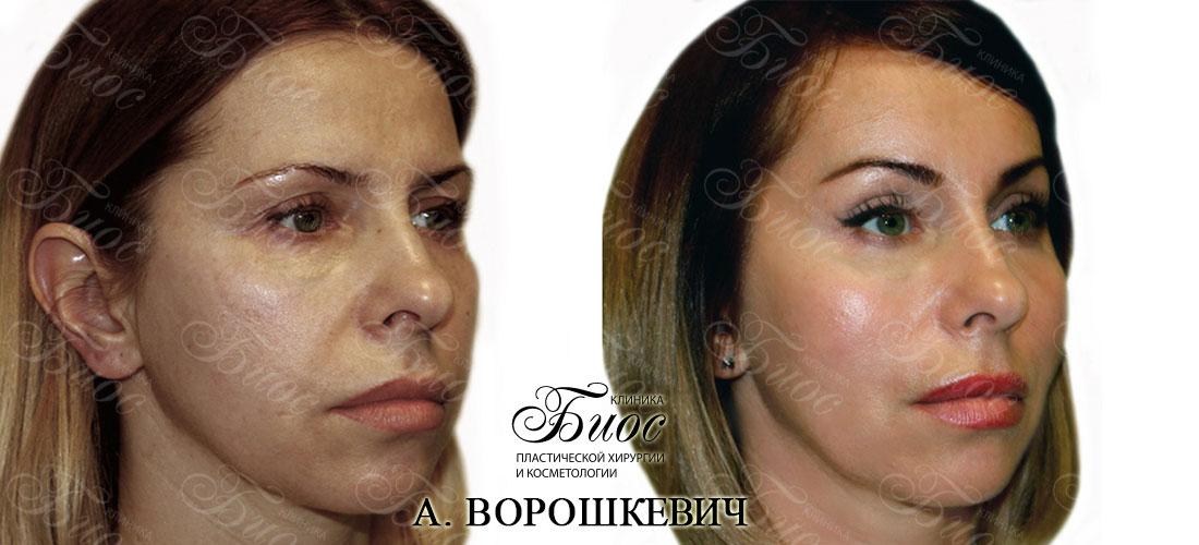 Пластическая операция круговая подтяжка лица