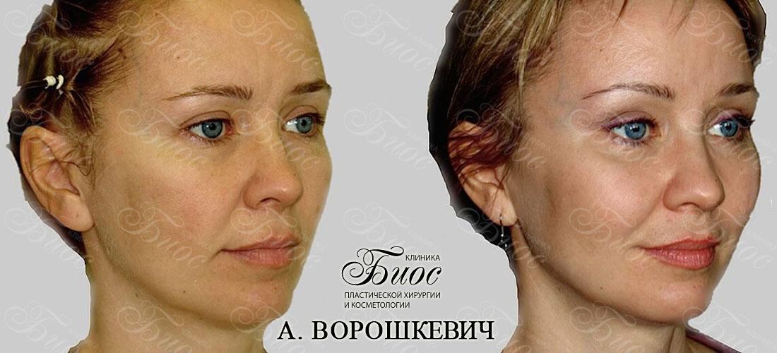 Подтяжка средней зоны лица через нижние веки