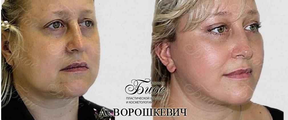 Круговая подтяжка лица smas
