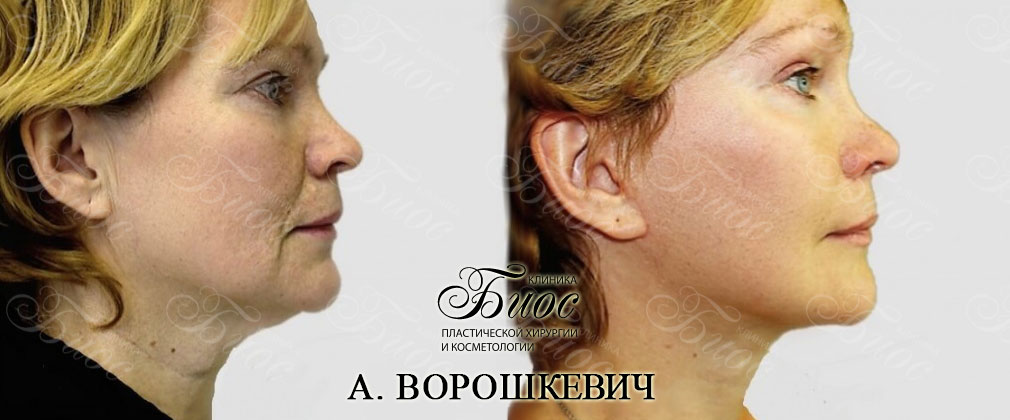 Смас подтяжка лица и шеи
