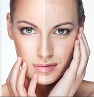 Пилинг - косметологическая процедура удаления отмерших клеток эпидермиса